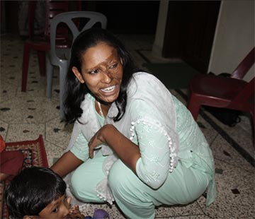 This Bangladeshi mother was the victim of an honor-based acid attack.